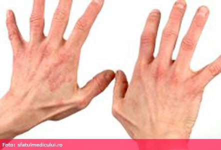 eczema sub ochi rosdiana instagram